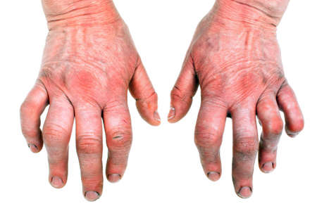 stretching condition: Womans hands deformed from rheumatoid arthritis Stock Photo