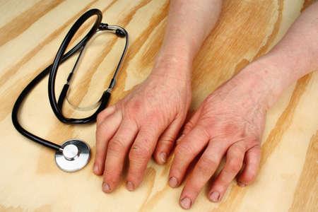 arthritic: Rheumatoid arthritis hands and stethoscope on a wooden table