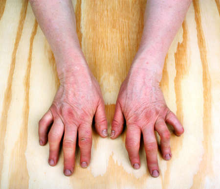 Rheumatoid arthritis hands. Wooden background Stock Photo