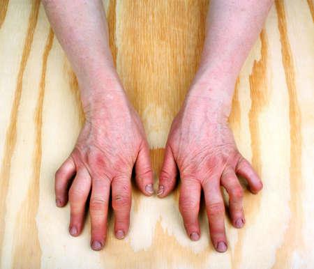 arthritic: Rheumatoid arthritis hands. Wooden background Stock Photo