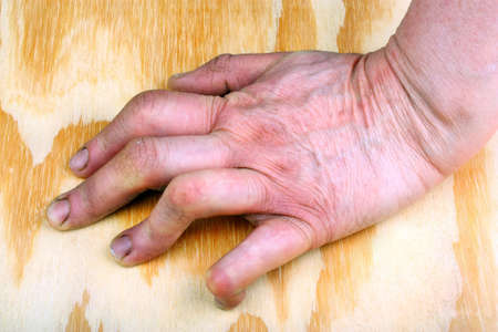 Rheumatoid arthritis hand. Wooden background Stock Photo