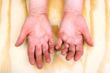 arthritic: Closeup of woman hands with strong arthritis Stock Photo