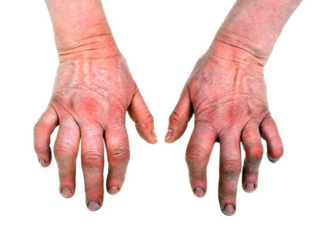 arthritic: Closeup of woman hands with strong arthritis Stock Photo