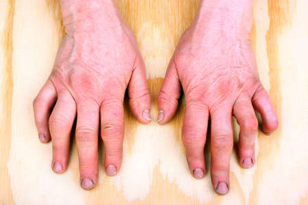 Womans hands deformed from rheumatoid arthritis Stock Photo