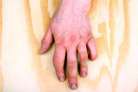 stretching condition: Rheumatoid arthritis hands. Rheumatoid finger on a wooden table
