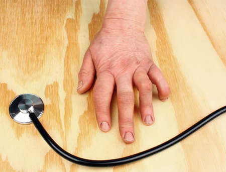 arthritic: Womans hand deformed from rheumatoid arthritis and stethoscope Stock Photo