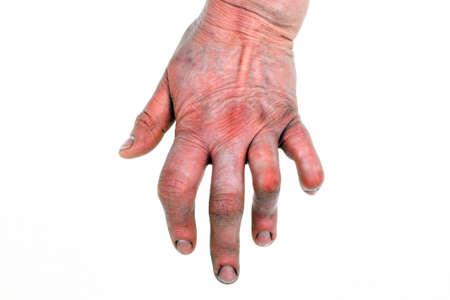 deformed: Womans hand deformed from rheumatoid arthritis
