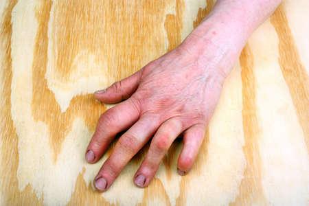 arthritic: Rheumatoid arthritis hand on a wooden table Stock Photo