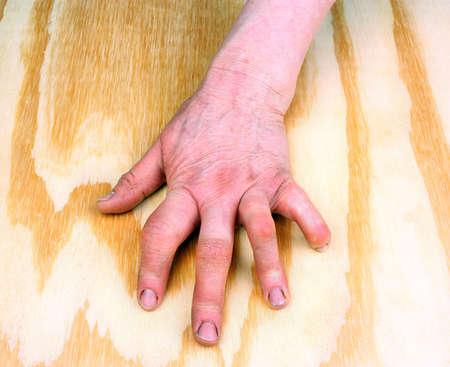arthritic: Rheumatoid arthritis hand. Rheumatoid finger on a wooden table