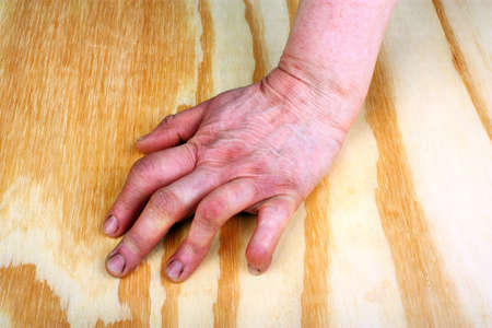 stretching condition: Rheumatoid arthritis hand on a wooden table Stock Photo