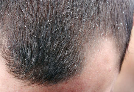 skin disease: Dandruff in the hair. Symptoms of skin disease