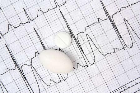 infarct: Electrocardiogram ECG and white pills Stock Photo