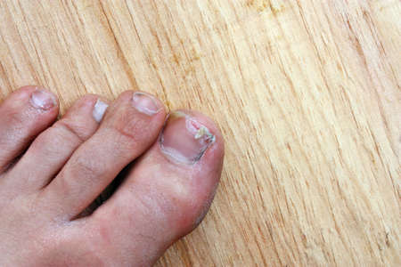 toenail: Injury accident broken toenail man