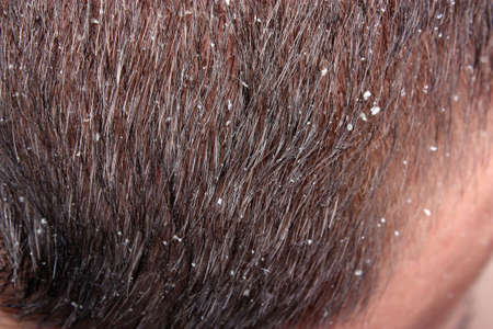 freaked: Dandruff in the hair of a man