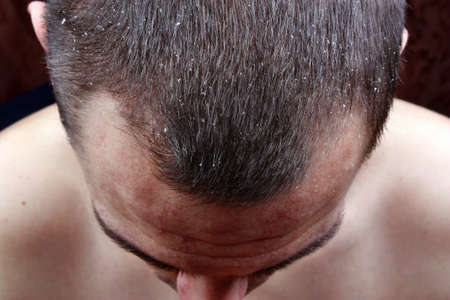 psoriasis: Symptoms of the disease psoriasis in hair Stock Photo