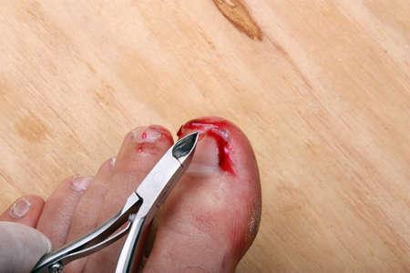 toenail fungus: Surgery on a broken bleeding toe nail a man Stock Photo