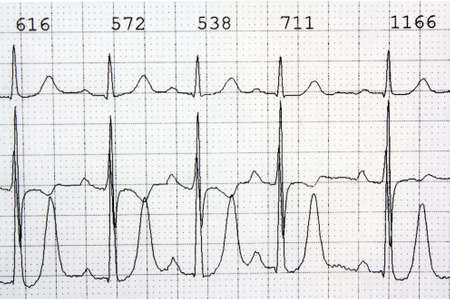 tachycardia: Electrocardiogram ekg heart rhythm disease cardiology background