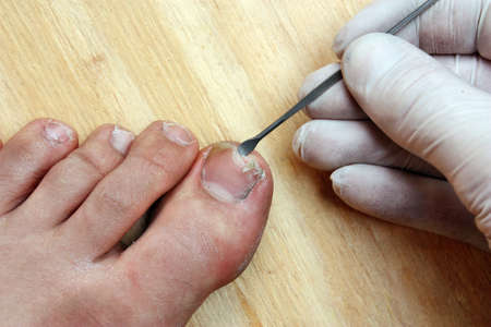 toenail: Treatment with a doctor surgeon broken off at the toe toenail