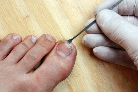 toenail fungus: Treatment with a doctor surgeon broken off at the toe toenail