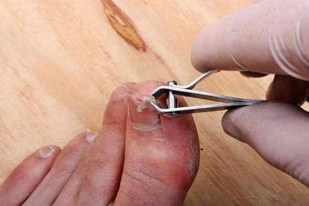 pus: Intervento chirurgico su un chiodo della punta spezzata di un uomo Archivio Fotografico