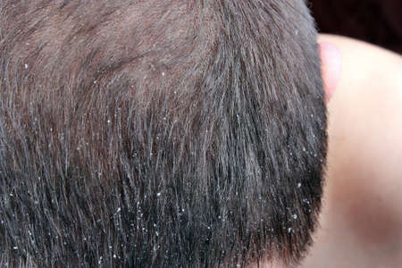 Dandruff in the hair. Symptoms of skin disease