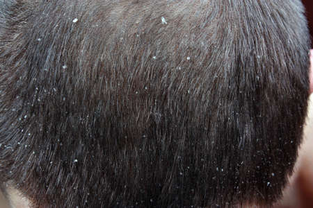 scalp: The symptoms of psoriasis scalp in the hair