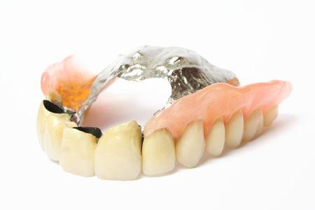 False Teeth (Denture, Crown, Bridge) photo