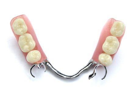 dentadura postiza: Los dientes falsos (pr�tesis, coronas, puentes)