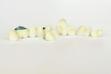 Porcelain fused to metal crowns, bridge (dentistry), dental plate