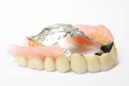 dentadura postiza: Pr�tesis dentales, pr�tesis dentales, pr�tesis parcial removible en fondos blancos Foto de archivo