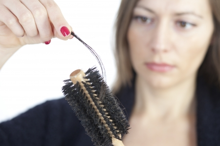 hair problem: Woman loosing hair Stock Photo