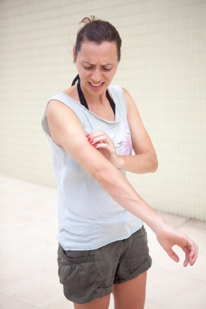 Woman with rash  photo