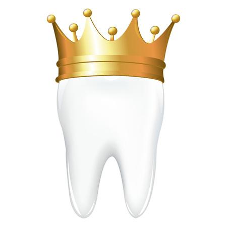 diente caries: Diente de corona, aislado sobre fondo blanco, ilustraci�n