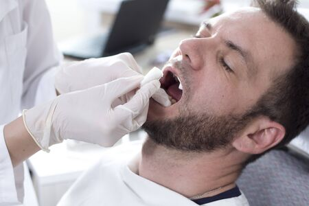 The face of a white man with an open mouth on a dental chair. The doctors hands in white gloves change the lignin roller in the patients mouth.