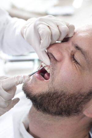 The dentists hands in white gloves hold a dental hollow and examine the teeth of a white man with light beard.