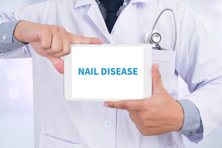 dystrophy: NAIL DISEASE Doctor holding  digital tablet