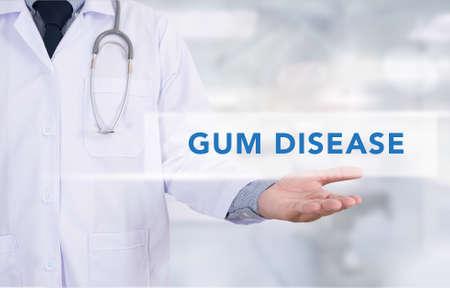 pathologic: GUM DISEASE CONCEPT Medicine doctor hand working
