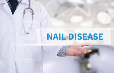dystrophy: NAIL DISEASE Medicine doctor hand working