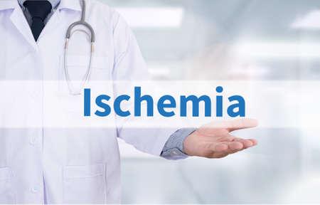 embolism: Ischemia Medicine doctor hand working