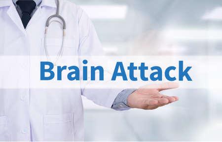 cva: Brain Attack Medicine doctor hand working