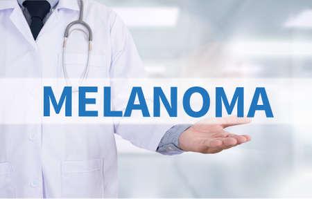 insolación: MELANOMA Medicina de trabajo médico mano