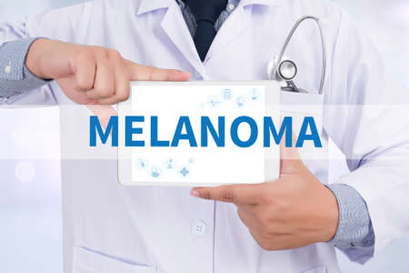 insolation: MELANOMA Doctor que sostiene la tableta digital