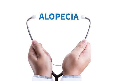 ALOPECIA male head , alopecia air loss haircare medicine bald treatment , Hair loss symptoms