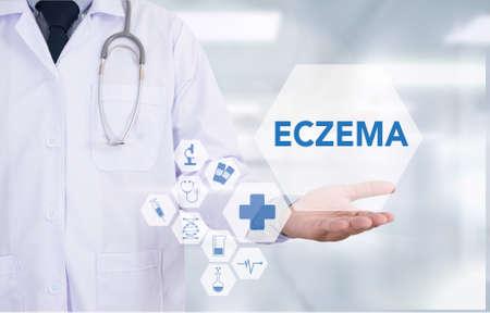eczema: ECZEMA dermatitis eczema skin of patient , The problem with many people