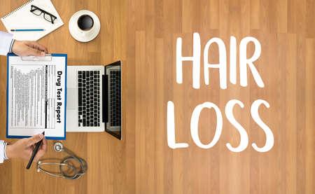 alopecia air loss haircare medicine bald treatment , Hair loss symptoms ALOPECIA male head Stock Photo