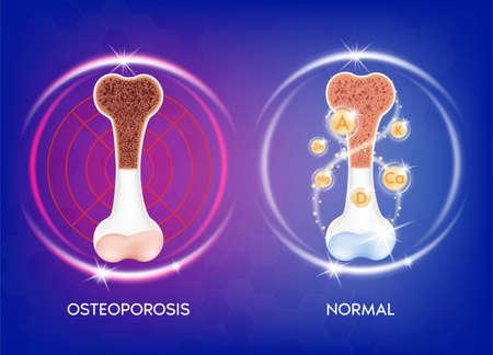 Realistic 3d bone Medical illustration healthy bone and unhealthy bone- osteoporosis. Medical or healthcare concept. bone protection.