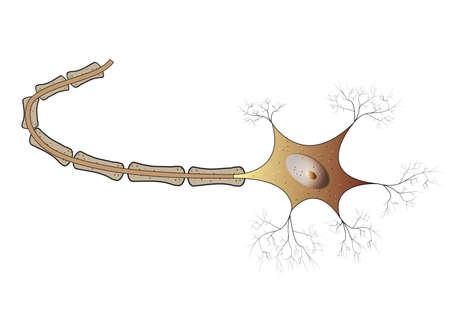 herniated: Nerve
