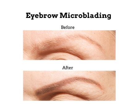 Unretouched before and after photos of a woman's eyebrow that has had a microblading procedure that fill in hair loss Standard-Bild