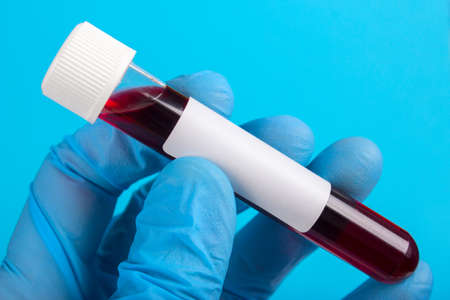 Sample of blood in vitro to the hand in glove on a blue background. empty space for text Stock Photo