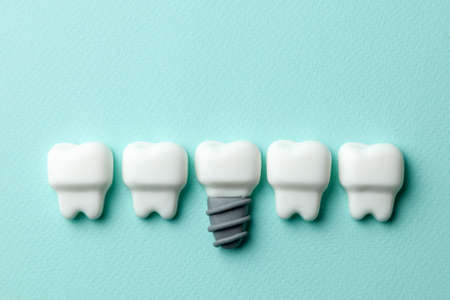 Healthy white teeth and implants on green mint background